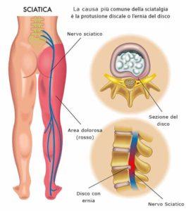 sciatica sciatalgia ozonoterapia lugano