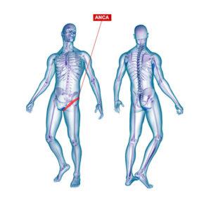 Curare artrosi dell'anca con ozonoterapia lugano