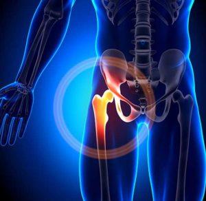 curare artrosi dell'anca con l'ozonoterapia lugano