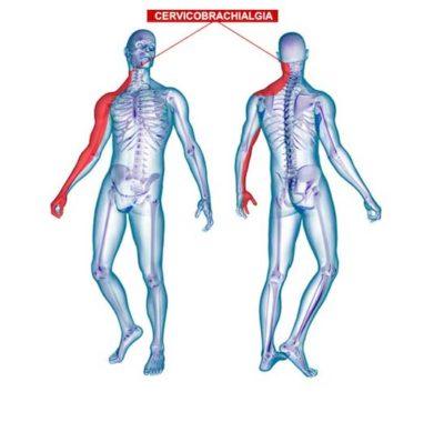 curare cervicobrachialgia con ozonoterapia lugano