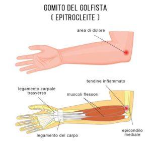 ozonoterapia cura gomito del golfista a Lugano