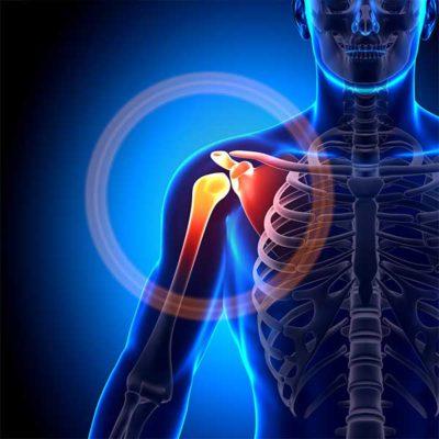 ozonoterapia per curare periartrite alla spalla lugano