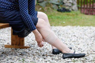 ozonoterapia è una buona cura per le ulcere delle gambe