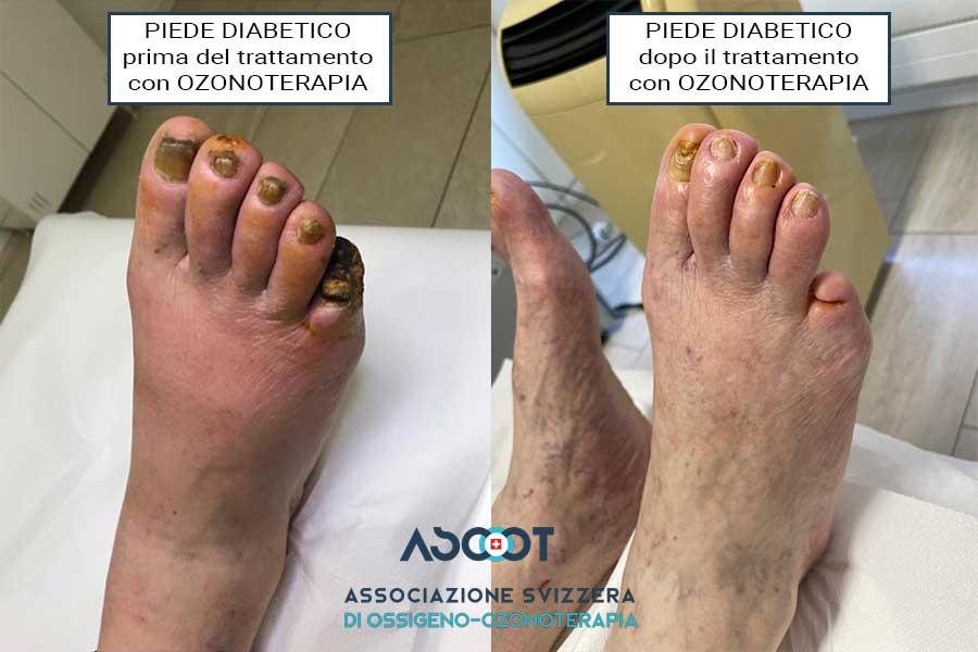 Curare-il-piede-diabetico-con-l'ozonoterapia-a-Lugano